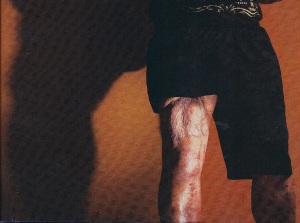 Cpl Isaias Herandez' thigh
